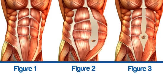 pregnancy, post, partum, diastisis, recti
