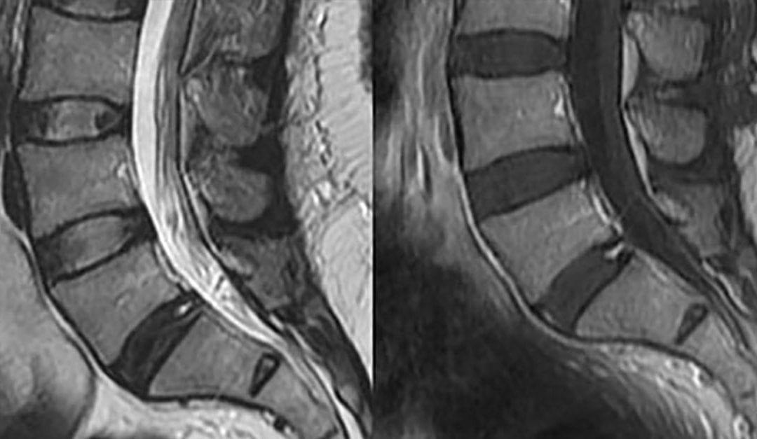 Do I Need an MRI?