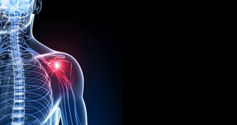Shoulder Pain: Impingement Syndrome