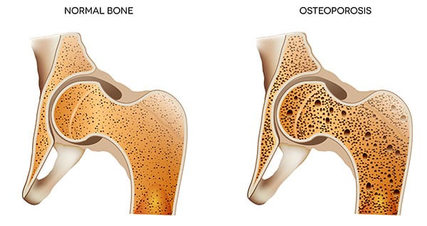 building, stronger, bones, osteoporosis, buffalo, rehab