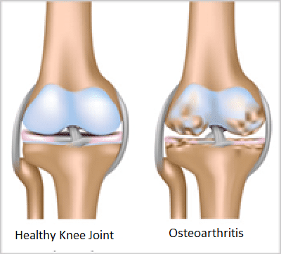 Knee, arthritis, physical, therapy