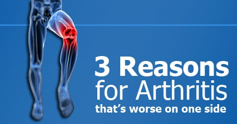 Why is my arthritis worse on one side? [Three Reasons]