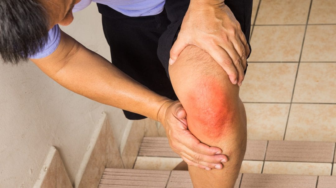How to Negotiate Stairs Without Pain