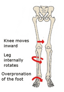 overpronation, PFPS, physical, therapy