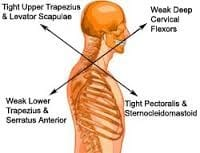 Upper-cross-syndrome-physical-therapy