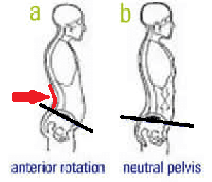 anterior-pelvic-rotation-physical-therapy