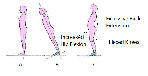 effect-high-heels-posture-physical-therapy
