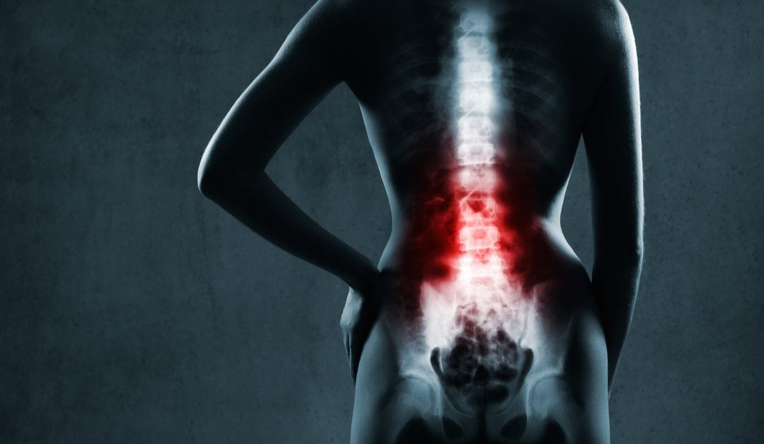 Five Changes To Improve Your Spine Health