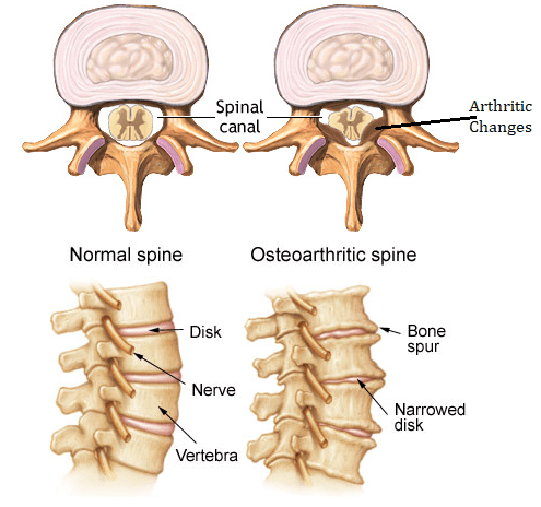 Three Causes of Low Back Pain   Buffalo Rehab Group