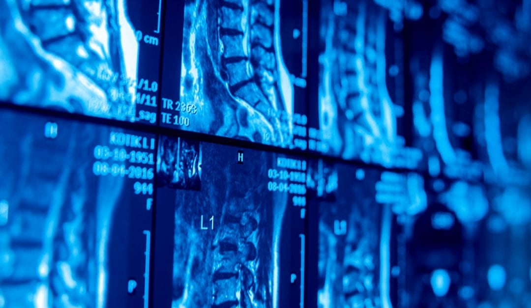 Should I Get an MRI or X-Ray Before Starting Physical Therapy?
